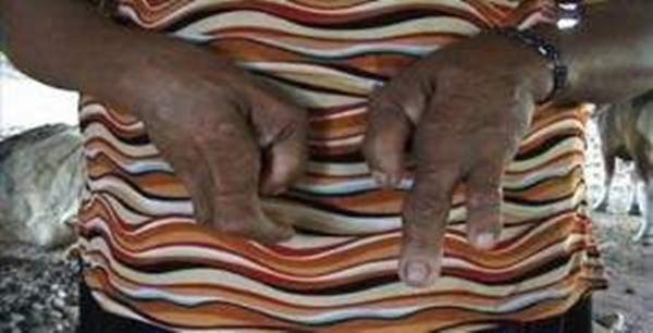 Ngôi làng của những người...3 ngón