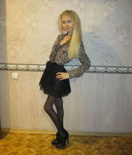 Thiếu nữ 20 tuổi nặng 20kg (6)