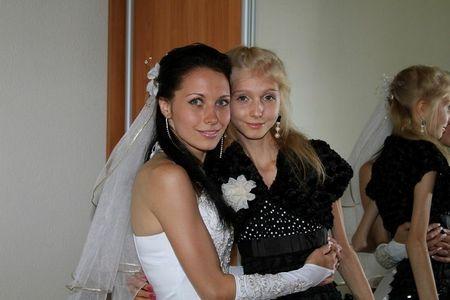 Thiếu nữ 20 tuổi nặng 20kg (2)