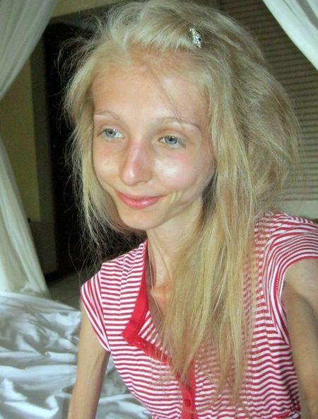 Thiếu nữ 20 tuổi nặng 20kg (14)