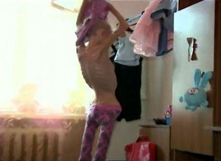 Thiếu nữ 20 tuổi nặng 20kg (11)