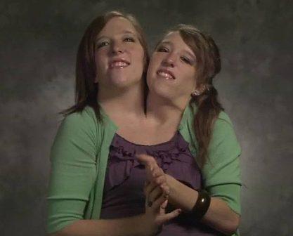 Abby và Brittany Hensel