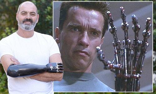 """Nigel Ackland - Người đàn ông có cánh tay """"kẻ hủy diệt"""""""