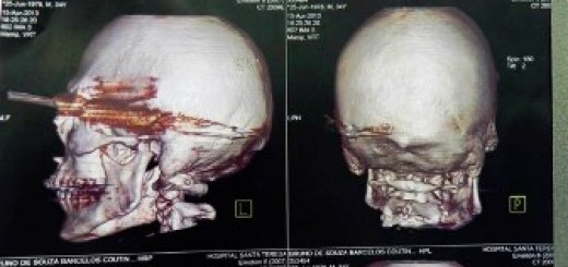Miracle as man survives firing 12-inch spear to his own head