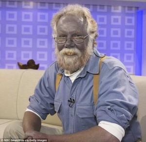 Ông Paul Karason nổi tiếng với làn da xanh tím