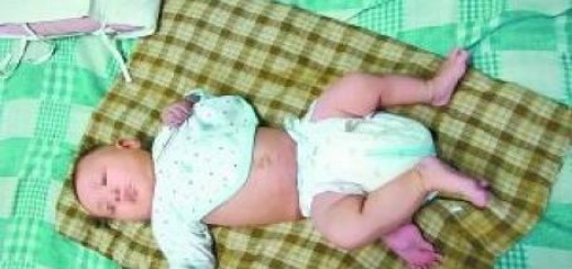 """Cô bé Jia Qian chào đời với """"chiếc đuôi"""" ngày một phát triển thành chiếc chân thứ ba"""