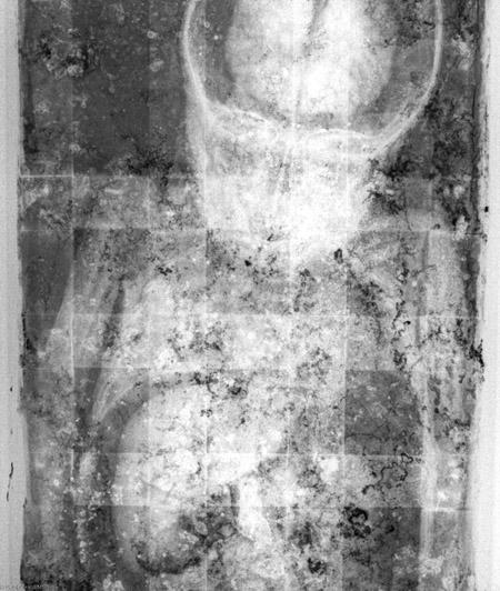 Hình chụp X-quang cho thấy các cơ quan nội tạng còn nguyên vẹn