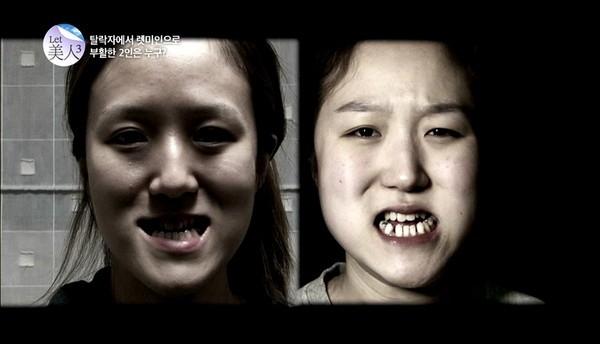 """Video Ngỡ ngàng cặp song sinh """"hóa thiên nga"""" nhờ thẩm m ỹ"""