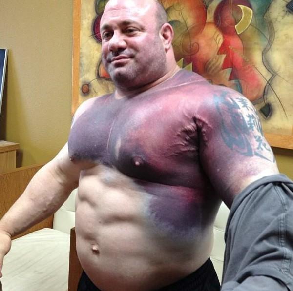 Thân trái bầm tím, gân guốc của lực sĩ bị rách cơ Scott Mendelson.