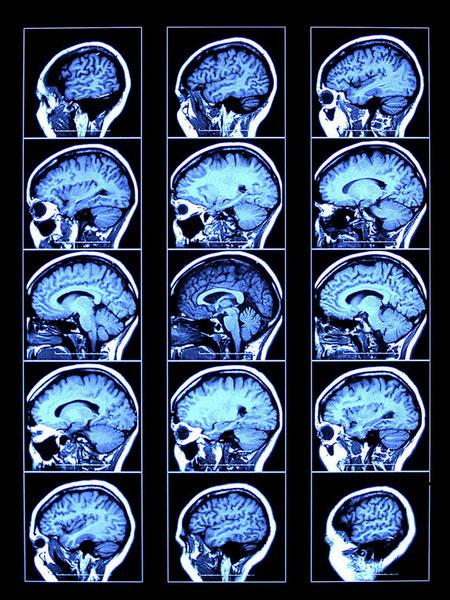 Bộ não đặc biệt