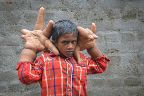 Cậu bé 8 tuổi luôn bị xa lánh, bắt  nạt vì có đôi bàn tay khổng lồ. Ảnh: Barcroft India.