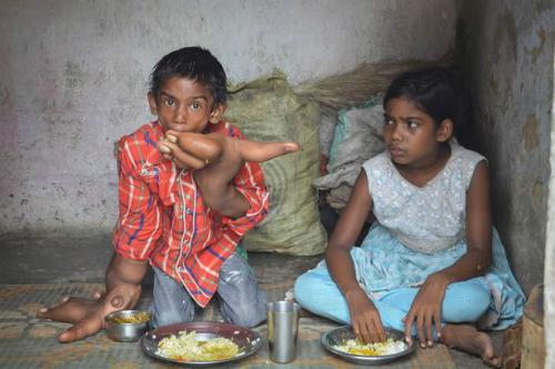 Kaleem bốc cơm ăn bên cạnh người em hoàn toàn bình thường của mình. Ảnh: Barcroft India.