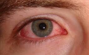 Triệu chứng khô mắt vô hình gây ra chứng viêm nhẹ và các mạch máu bị giãn nở, khiến chúng nổi rõ hơn