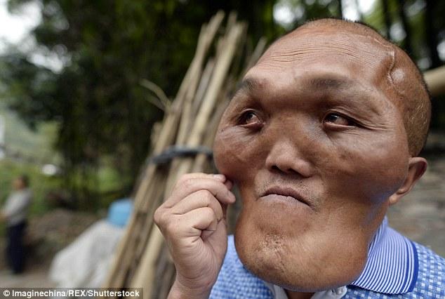 Người đàn ông mặc cảm vì khuôn mặt dị dạng như người ngoài hành tinh - Ảnh 3.