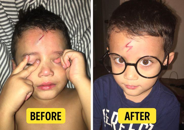 Một người mẹ được biết đến trên mạng xã hội với cái tên mommybrittaney đã tìm ra cách an ủi con trai mình sau khi cậu bé đập đầu vào mép khung giường.