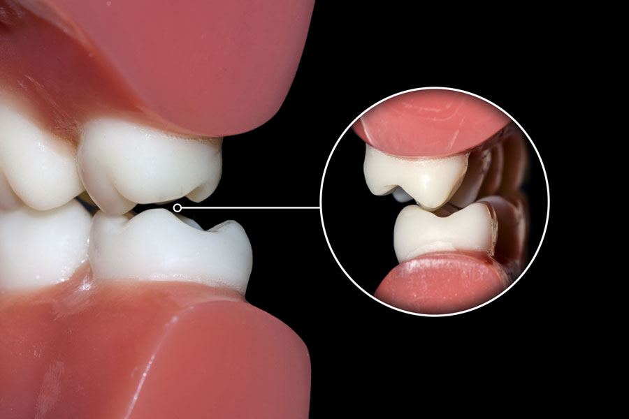 Khi nghiến và nghiến răng diễn ra thường xuyên, răng sẽ bị hư hại, và các biến chứng nghiêm trọng khác ở miệng và hàm có thể phát sinh, chẳng hạn như TMD (rối loạn thái dương hàm).